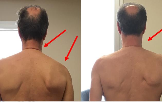 Traitements posturaux et hyperkyphose : 8 séances INDIBA activ en modulation continue
