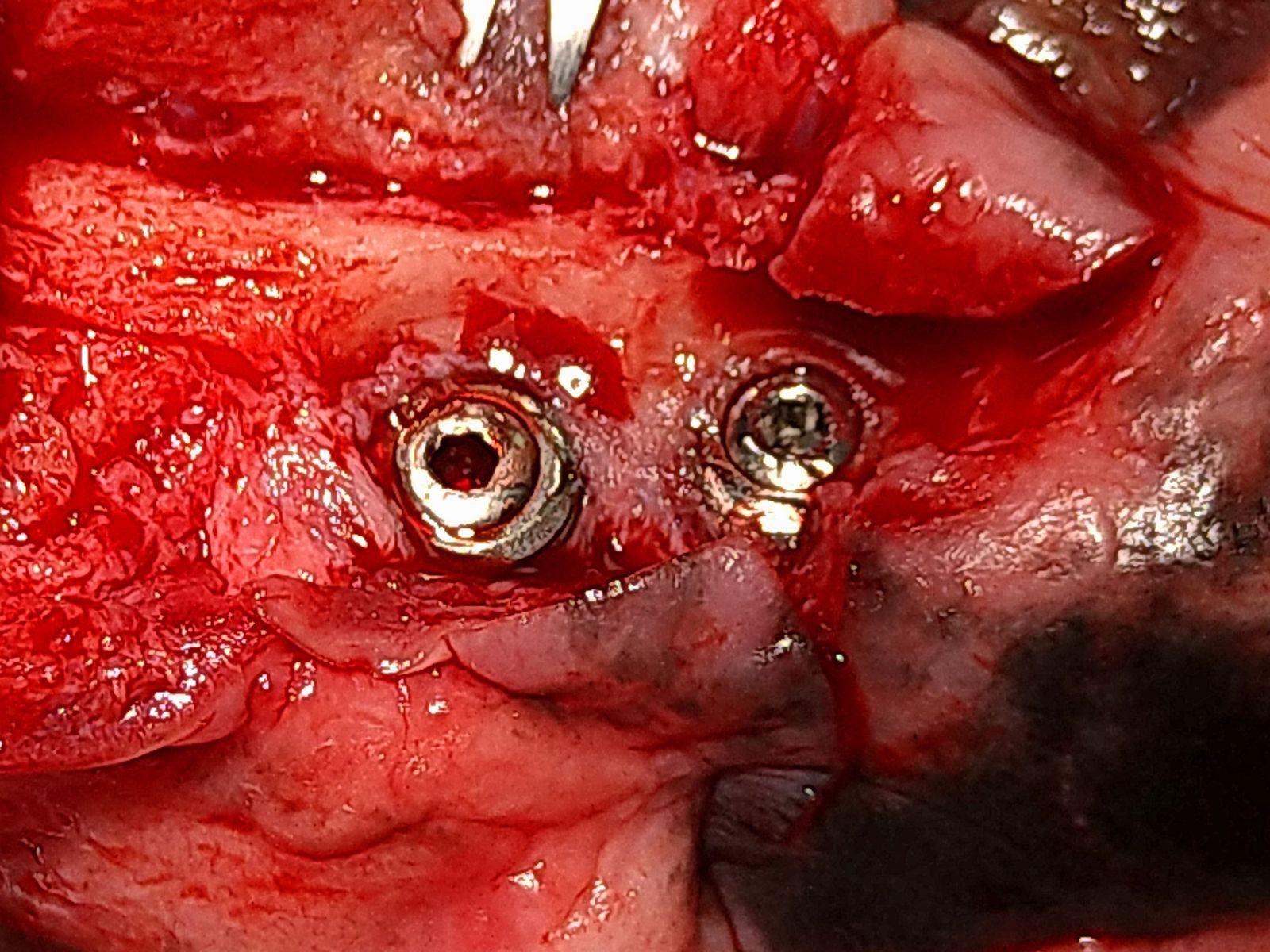 3 mois post implant