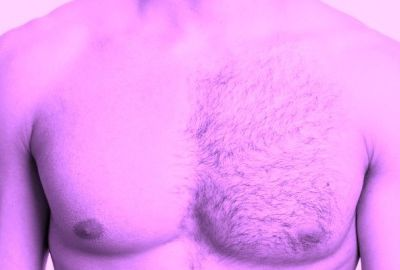 WHY LASER HAIR REMOVAL IS NOT JUST FOR WOMEN