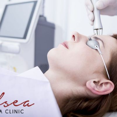 All you need to know about laser acne scar treatment – how can you find the best and affordable aesthetic clinic in Singapore?
