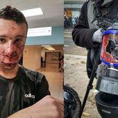 Pour l'anniversaire des Gilets Jaunes, un journaliste reçoit une grenade en plein visage - MOINS de BIENS PLUS de LIENS