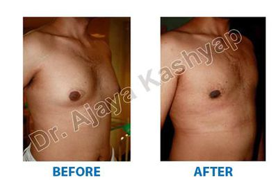 What is the cost of gynecomastia surgery in India?