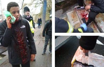 Lilian, adolescent de 15 ans, blessé par un tir de flash-ball au visage à Strasbourg alors qu'il ne manifestait pas (Vidéos)