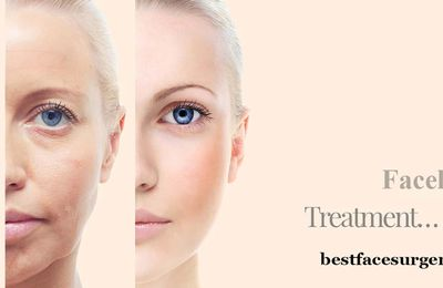 Facelift Surgery in Delhi – Mini Face Lift Surgery at a Glance