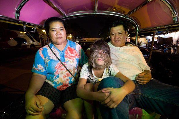 La niña tailandesa, Supatra Sasuphan, la más peluda del mundo. El Muni.