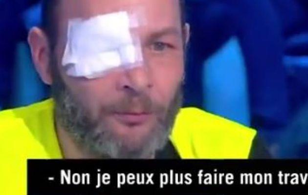 Ardisson : Le témoignage choc d'un Gilet Jaune qui  a perdu son œil lors d'une manifestation à cause d'un Flashball