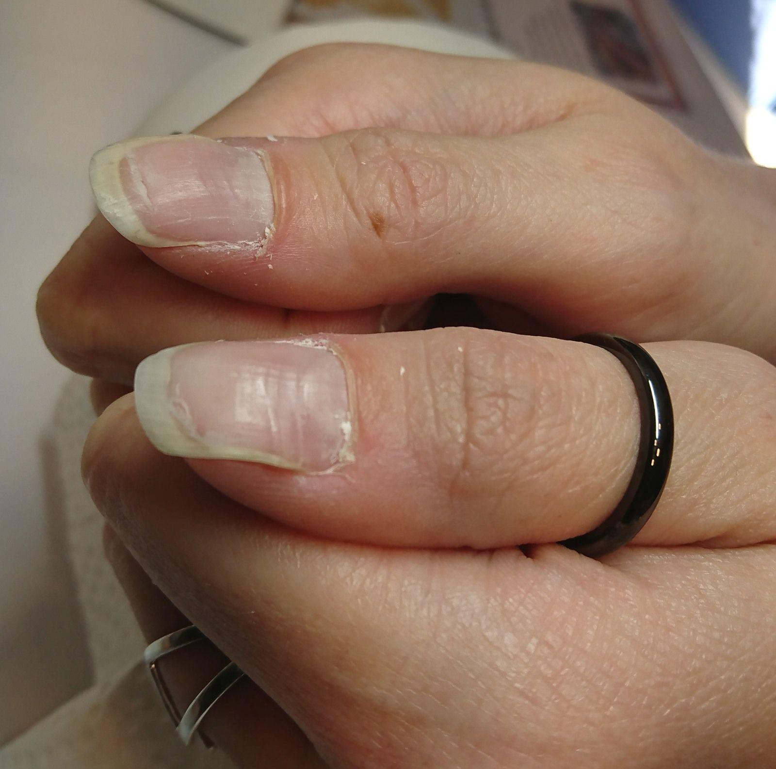 avant après reconstruction d'ongles décolés avec vagues et stries tres marquées