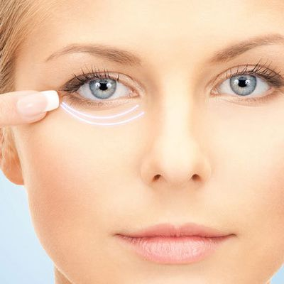 What are Dark Circles and How to Get Rid of them Complete Overview
