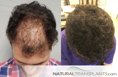 Find out about   FUT vs FUE Process Baldness Cure Fort Lauderdale