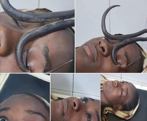 Un médecin sauve une petite fille après qu'un crochet de fer lui soit passé dans les yeux (photos graphiques)