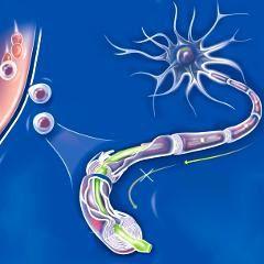 Sclérose en plaques : un nouveau médicament potentiel basé sur un anticorps (source PSYCHOMEDIA)