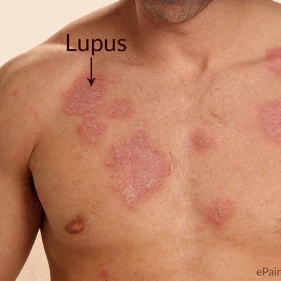 Exactly what is Lupus?