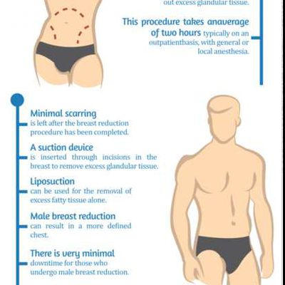 Male Breast Reduction - What Are the Benefits?