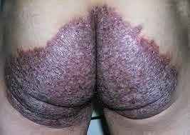 nama obat gatal ampuh untuk pantat atau bokong di apotik ampuh