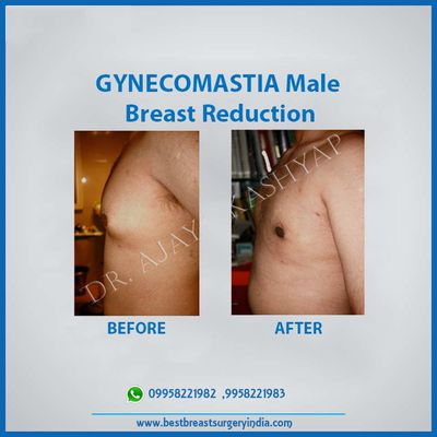 Gynecomastia Surgery in Delhi – Know more about its Symptoms