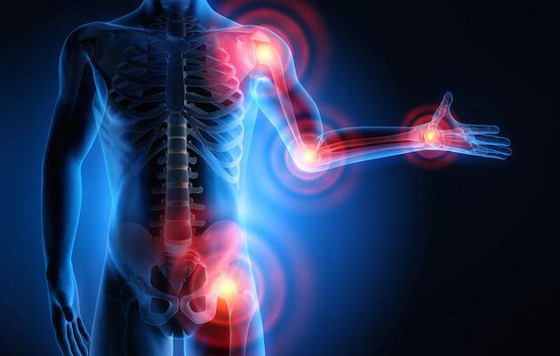 Les fumeurs sont plus à risque de souffrir d'une polyarthrite rhumatoïde