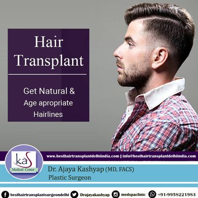 Hair Transplant Surgery - How Long It Takes To See The Hair Growth?