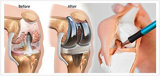 Dr Saurabh Goyal - Best Joint Replacement Surgeon in Ahmedabad, India