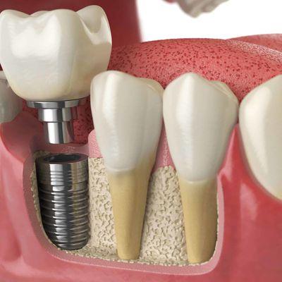 Trồng răng sứ bị đau nguyên nhân do đâu, làm sao để khắc phục?
