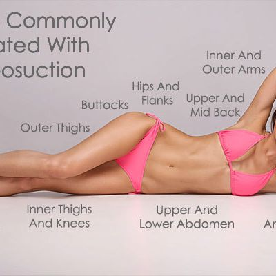 Shed Excessive Fat Deposits with Liposuction Cosmetic Surgery in Delhi