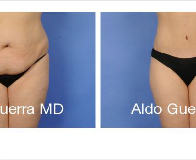 The Two-Sided History of Tummy Tuck Procedures