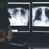 Lung damage could be caused by long COVID suggests Oxford research - Emerging Risks Media Ltd