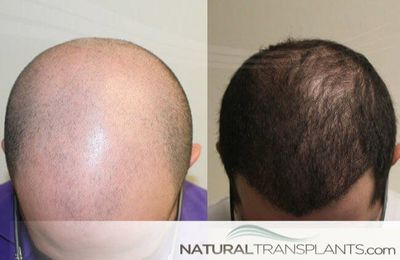 Information about   FUT vs FUE Process Hair Loss Treatment For Men Fort Lauderdale