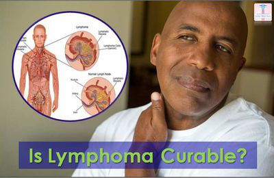 Different Options Available for Lymphoma Treatment in India