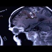 Accidents vasculaires cérébraux, les bons réflexes - Enquête de santé le documentaire