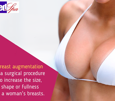 Breast Augmentation for Increasing Size and Projection of Breasts