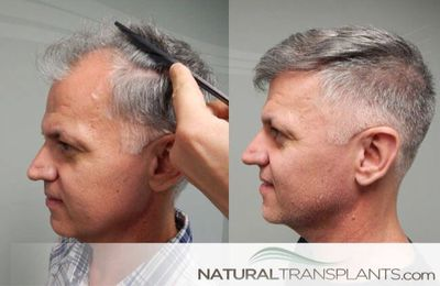 Visit our website and learn about Fort Lauderdale Baldness Cure