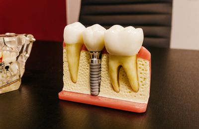 Dental Implants - A Quick Overview