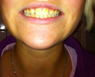 Zwischenstand Zähne!