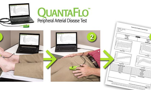 QUANTAFLO - A Highly Efficient Way to Identify Risk Factors to Peripheral Artery Disease (PAD)