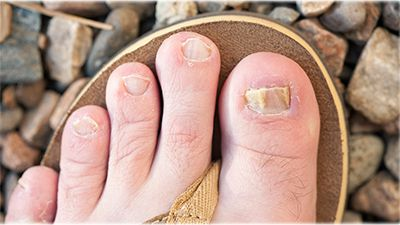 4 Facts About Why People Hide Toenail Fungus