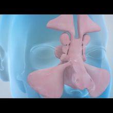 Balloon Sinuplasty and Endoscopic Sinus Surgery