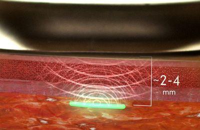 Dr. Joseph Mercola: Un biochip inyectable para la detección de CoV-2-SARS pronto será aprobado por la Food and Drug Administration