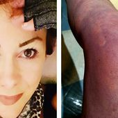 Woman believes she caught coronavirus months ago and is still suffering now