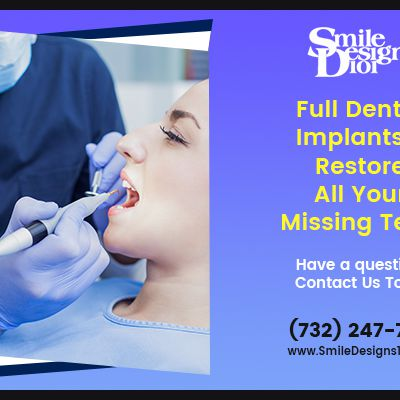 Pros and Cons of Full Mouth Dental Implants