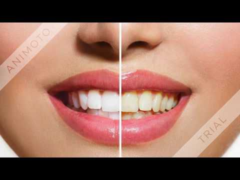 White Light Smile - Saves You Money on Teeth Whitening