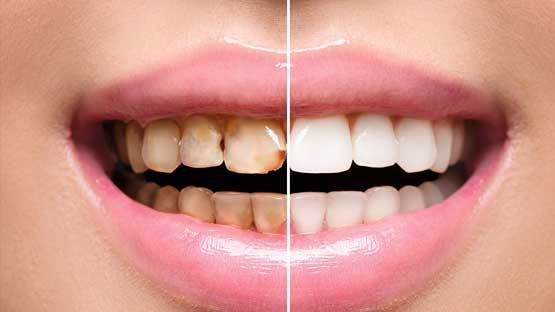 Get The Top Full Mouth Reconstruction Treatment And Eliminate All Dental Problems Right Away