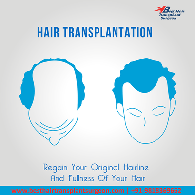 Hair surgery in India – Why you should consider it?