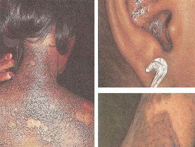 Imágenes complicaciones cutáneas por blanqueo de la piel.- El Muni