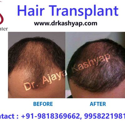How to Choose Hair Transplant Doctor Delhi?