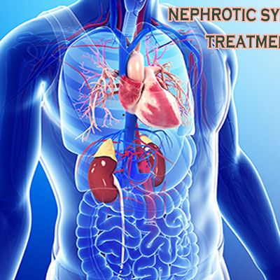 Nephrotic Syndrome Ayurvedic Treatment - Dr. Puneet Dhawan