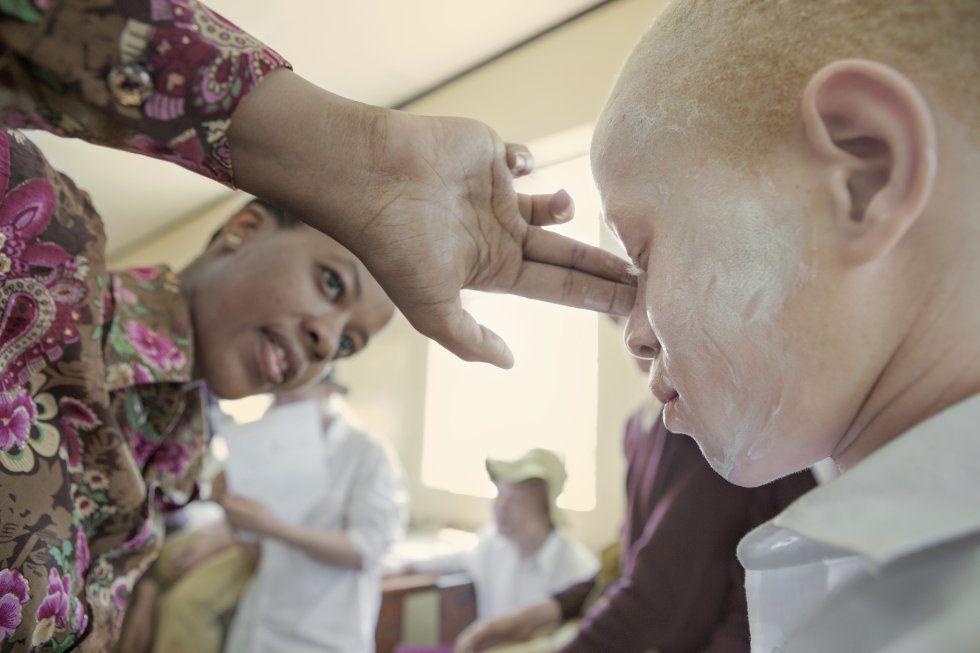 Brujería en Africa: el macabro destino de los albinos negros..