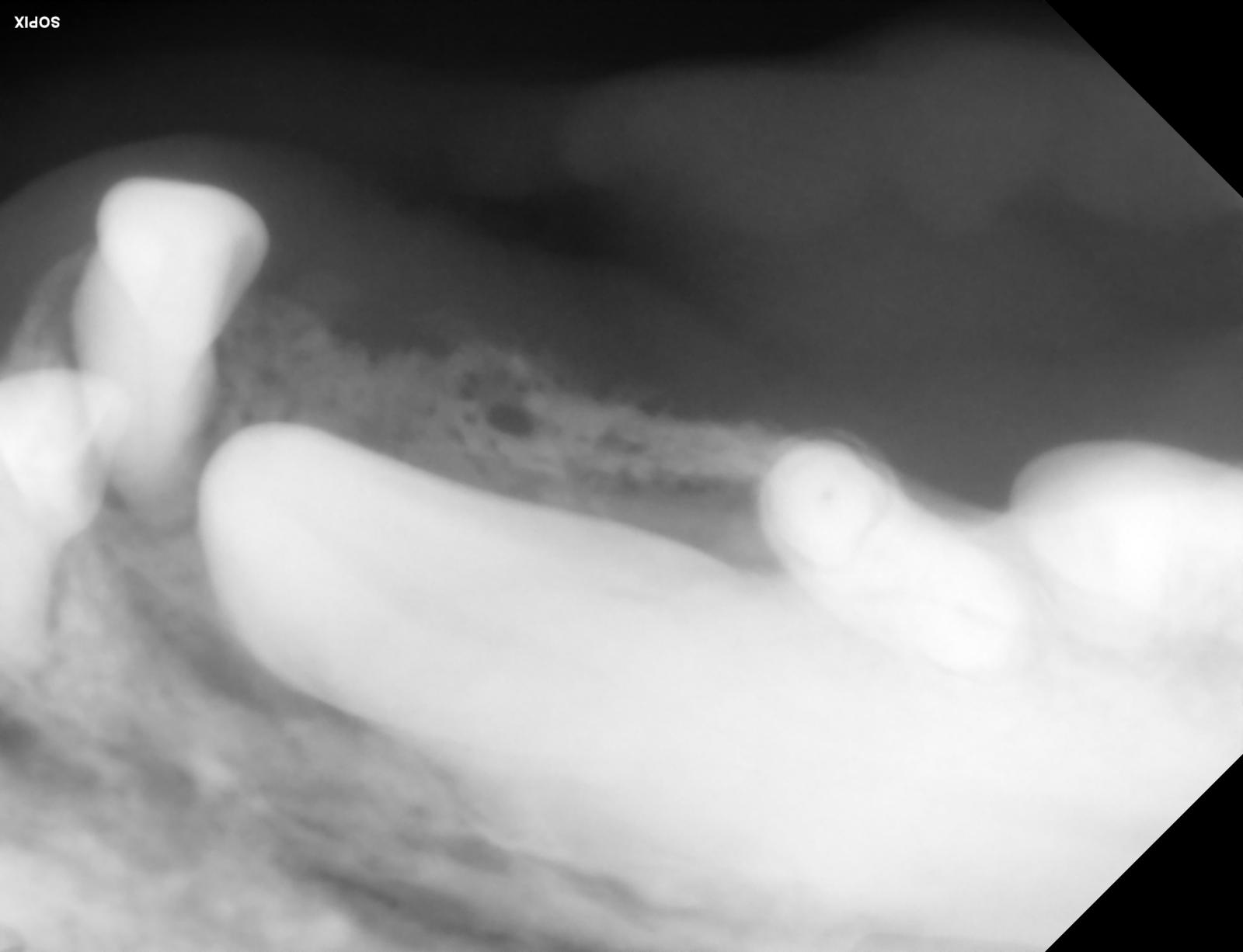 radio pré opératoire = noté la lyse osseuse péri alvéolaire