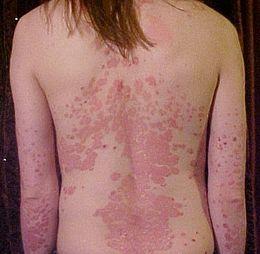 Médecine : Soigner le psoriasis.