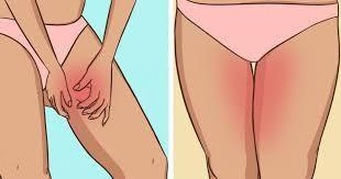 8 Astuces contre les jambes qui frottent en été