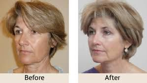 Everything You Want to Know About a Thread Lift Procedure